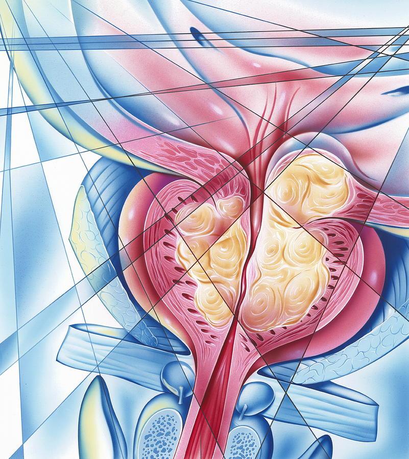 На фоне простатита клинические симптомы простатита