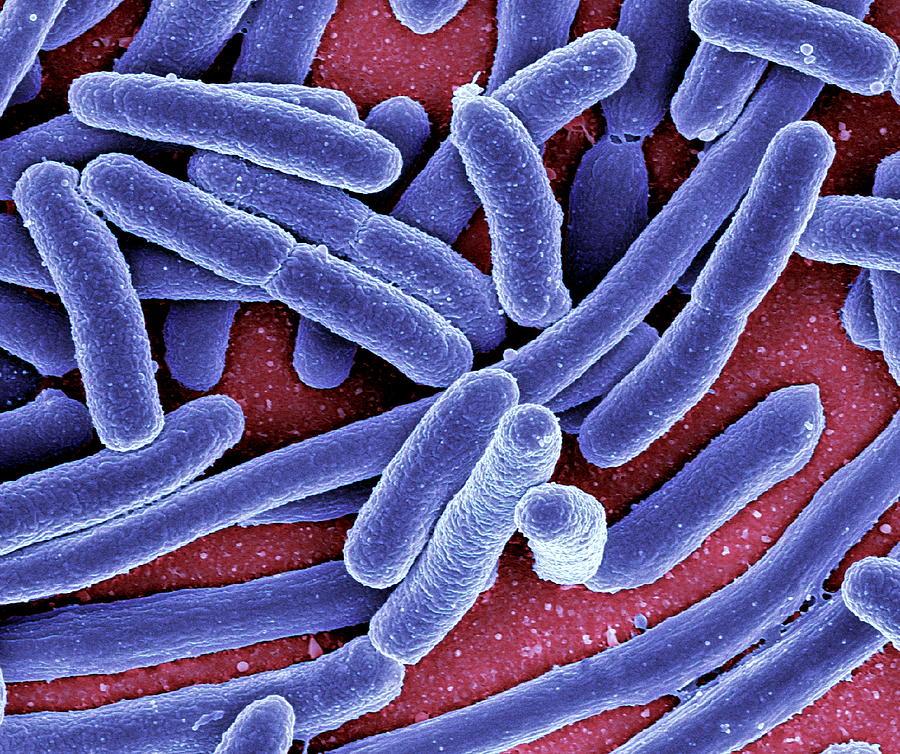 Escherichia Coli Bacteria Sem Photograph By Niaidcdc