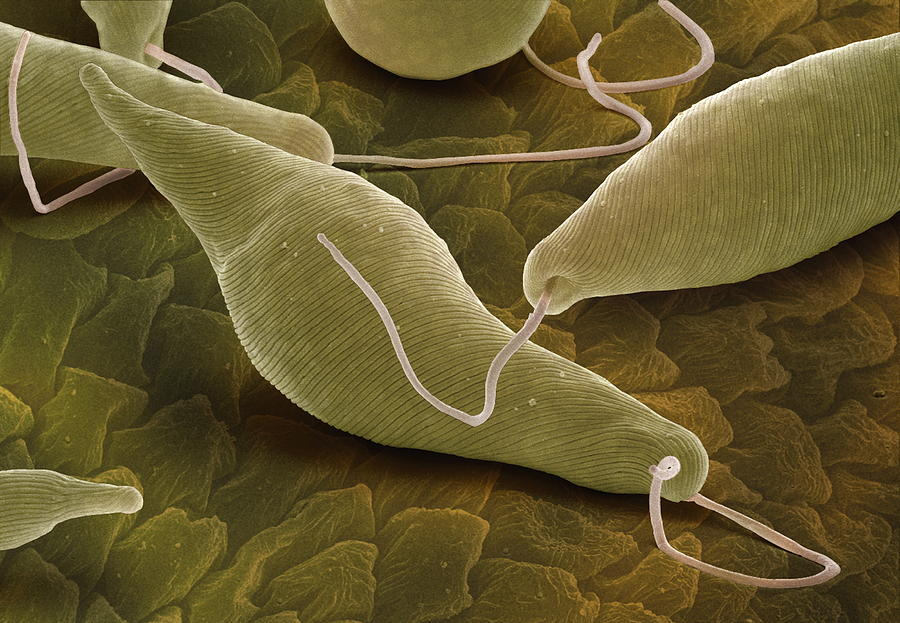 Euglena Gracilis  Sem Photograph By Power And Syred