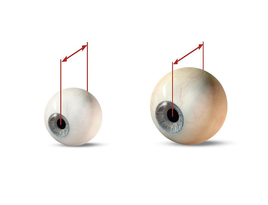 Human Photograph - Eye Size Comparison, Artwork by Claus Lunau