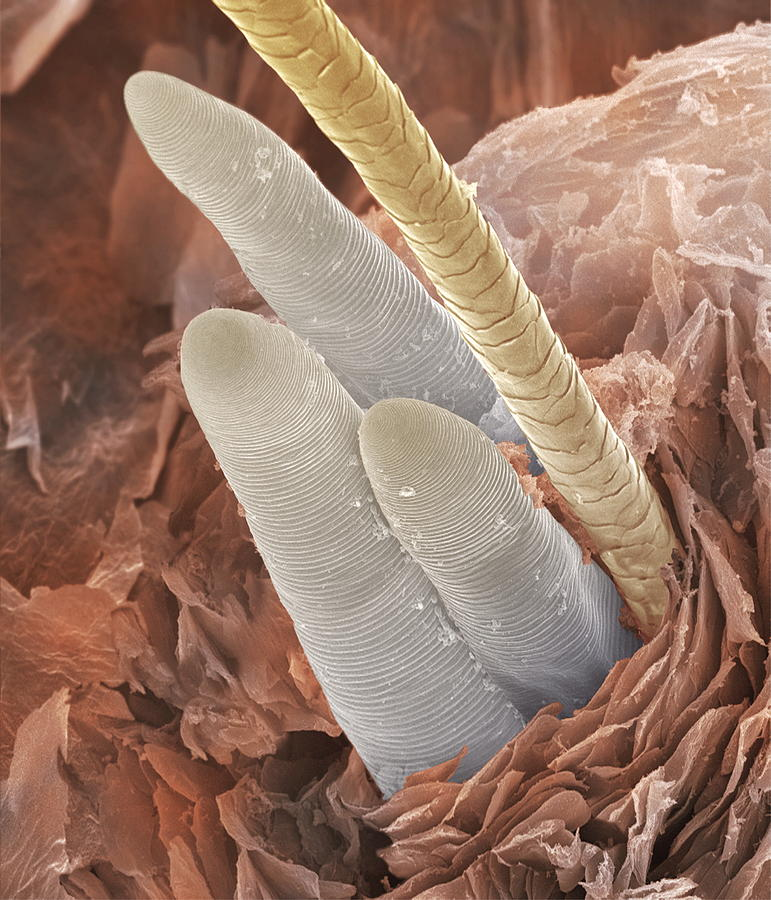 Eyelash Mite Tails Sem Photograph By Power And Syred
