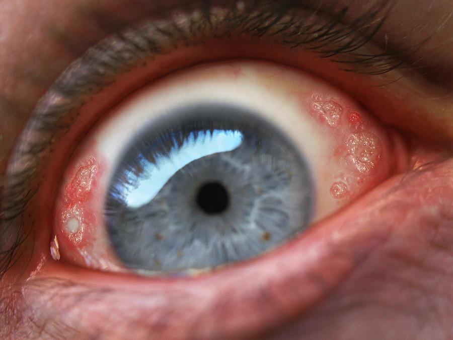 Eyeball Photograph - Eyesore by Baron Dixon