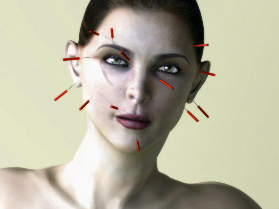 Facial Acupuncture, Artwork Photograph by Christian Darkin