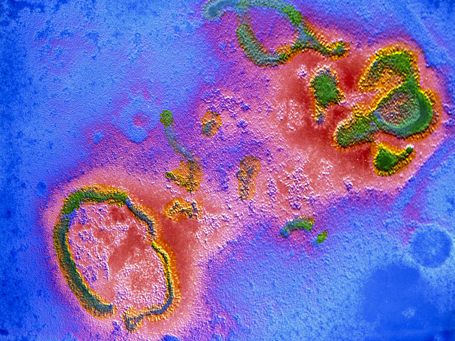 Paramyxovirus Photograph - False-col Tem Of Respiratory Syncytial (rs) Virus by Cnri