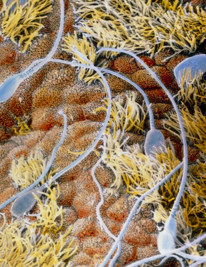 Sperm Photograph - False-colour Sem Of Sperm In The Uterine Cavity by Professors P.m. Motta & J. Van Blerkom