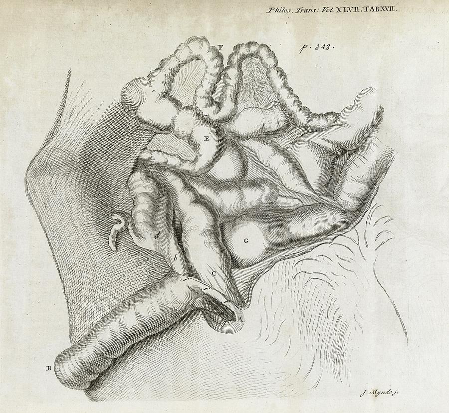 Disorder Photograph - Fistula And Hernia, 18th Century by Middle Temple Library