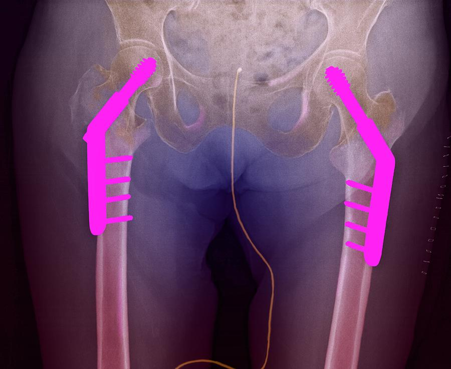 Coloured X-ray Photograph - Fixed Double Hip Fracture (image 2 Of 2) by Du Cane Medical Imaging Ltd