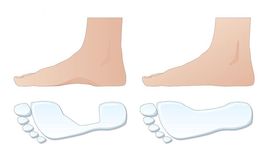 Footprint Photograph - Flat Foot Comparison, Artwork by Peter Gardiner