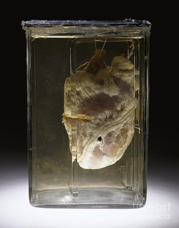 Science Photograph - Forensic Evidence, Heart Perforated by Science Source