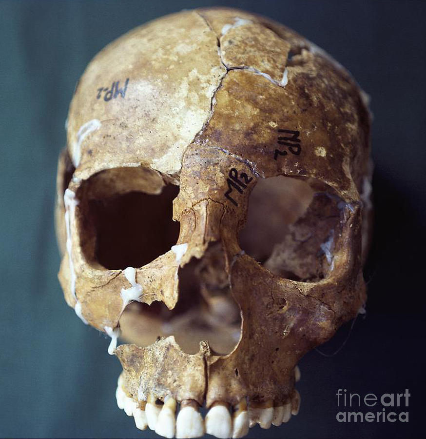Science Photograph - Forensic Evidence, Skull Reconstruction by Science Source