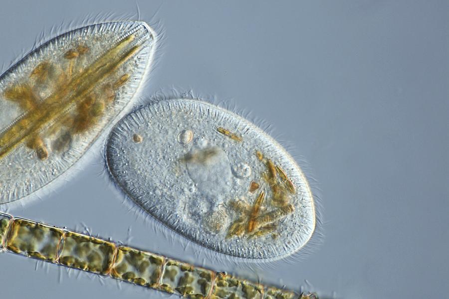 Animal Photograph - Frontonia Protozoa, Light Micrograph by Frank Fox