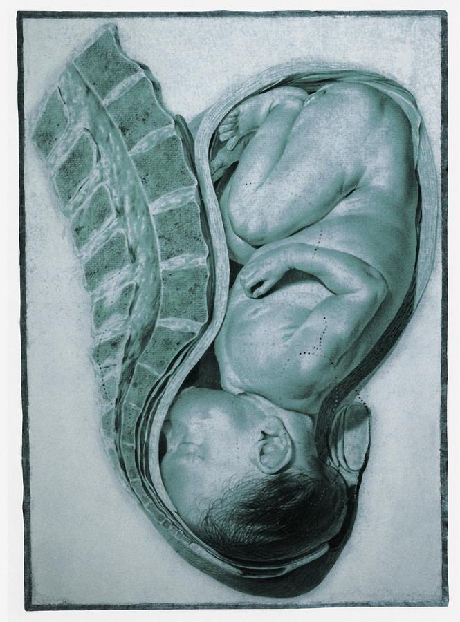 Baby Photograph - Full-term Foetus At 40 Weeks by Mehau Kulyk
