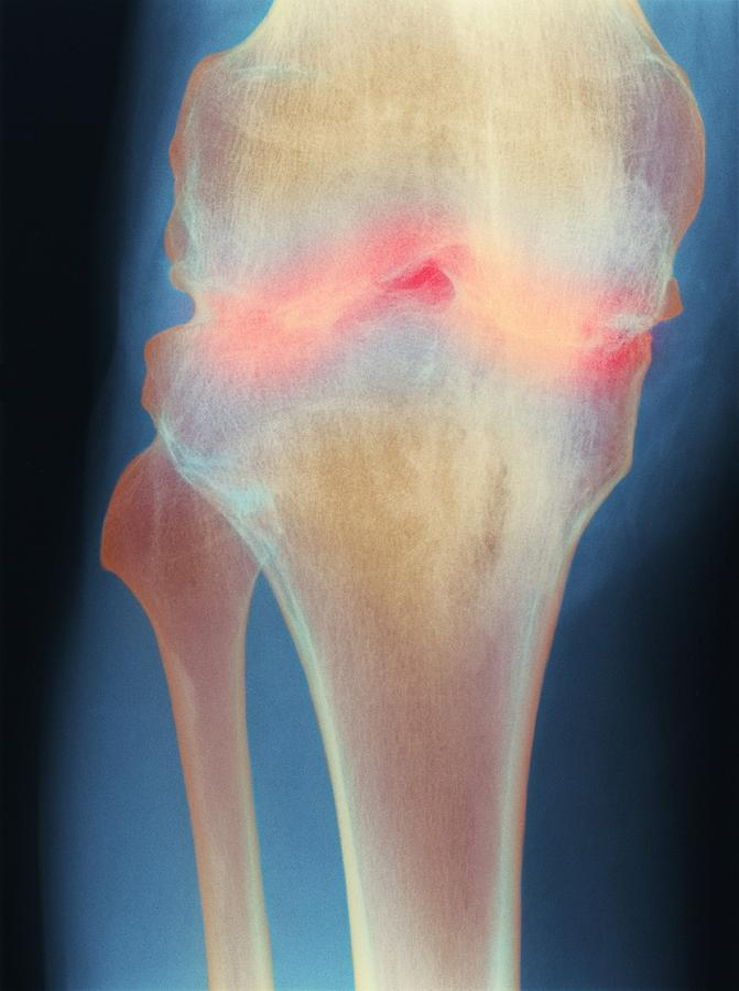Knee Photograph - Fused Knee Joint, X-ray by