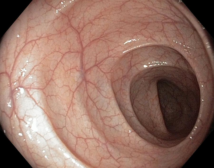 Sigmoid Colon Photograph - Healthy Colon, Large Intestine by Gastrolab