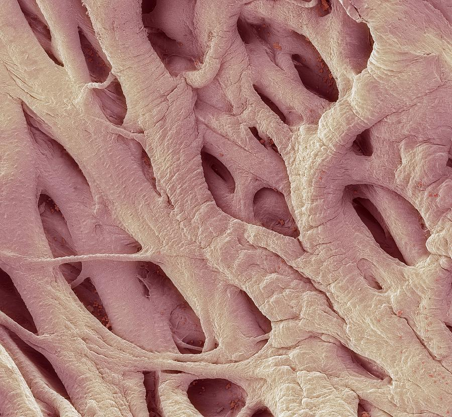Electron Microscope Photograph - Heart Strings, Sem by Steve Gschmeissner