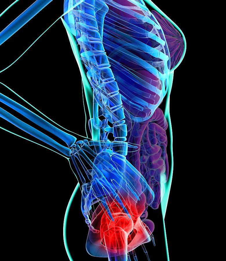 Vertical Digital Art - Hip Pain, Conceptual Artwork by Roger Harris