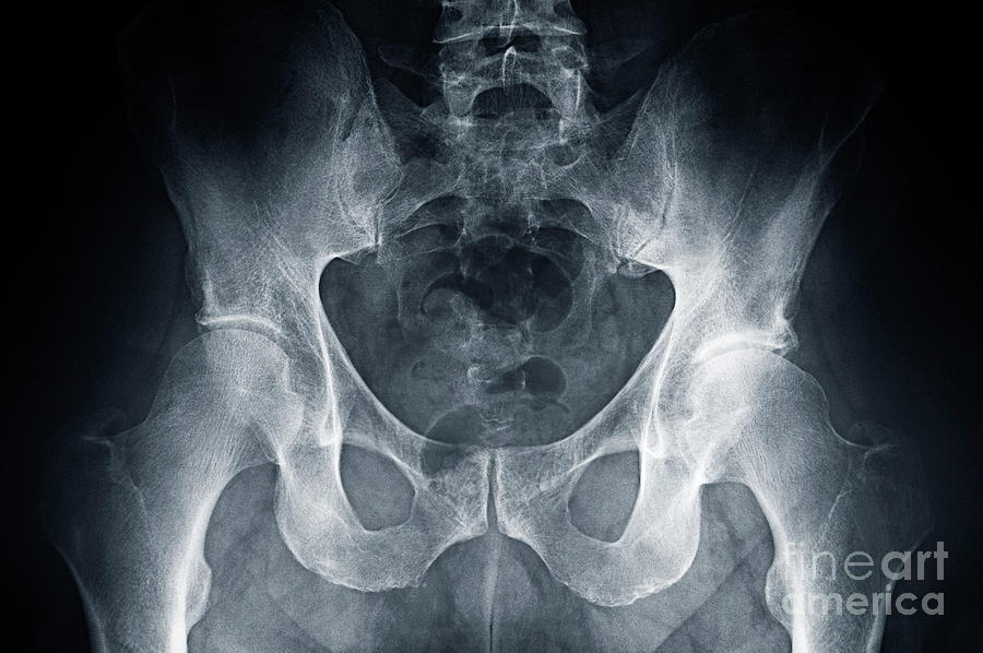 Scrutiny Photograph - Hip X-ray by Sami Sarkis