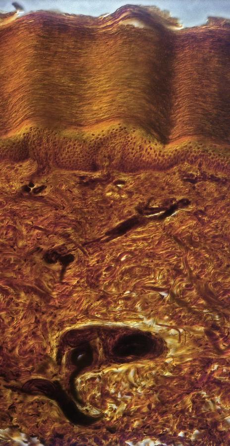 Tissue Photograph - Human Skin, Light Micrograph by Robert Markus