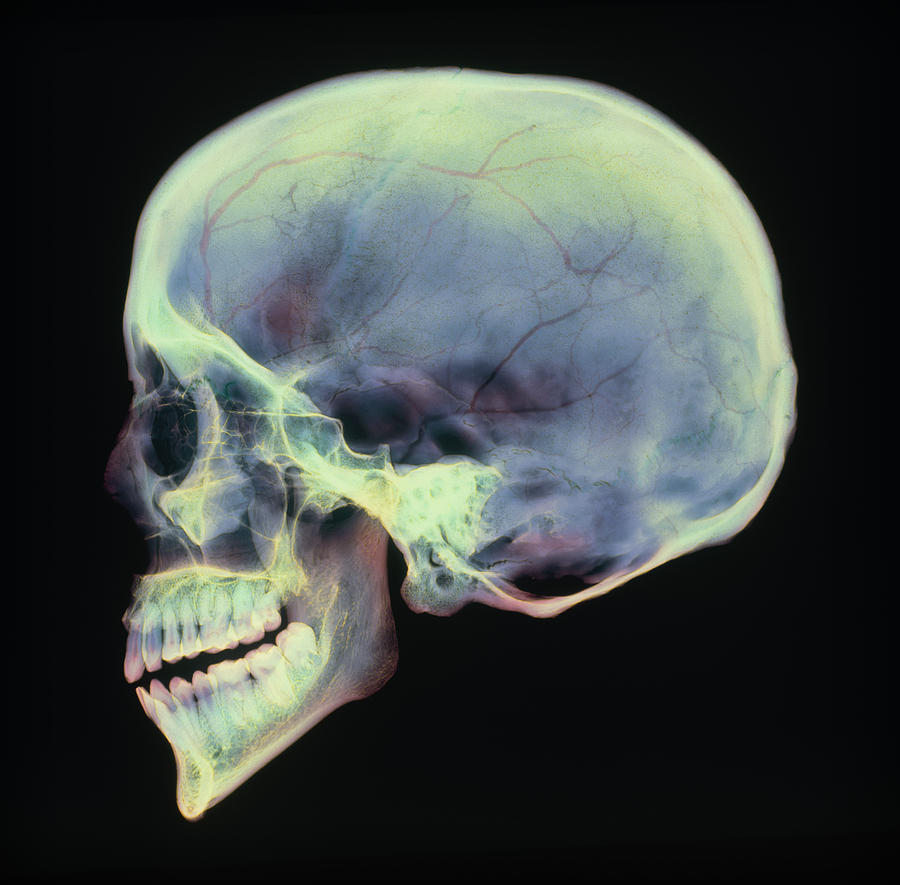 Human Body Photograph - Human Skull, X-ray by D. Roberts