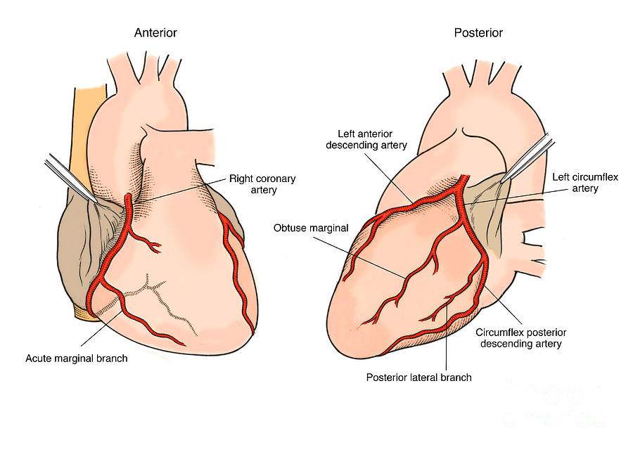 Illustration Of Coronary Arteries Photograph by Science Source