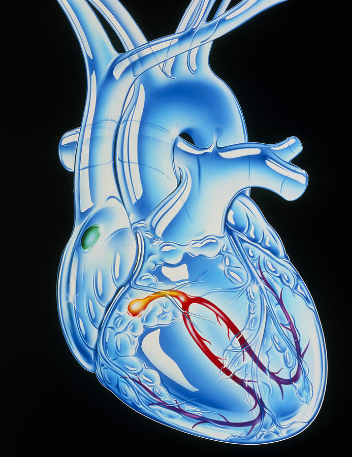 Illustration Of Electrical Conduction In The Heart ...