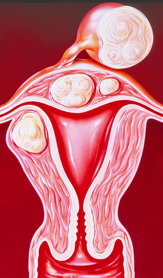 Fibroid Photograph - Illustration Of Fibroids In The Uterus by John Bavosi