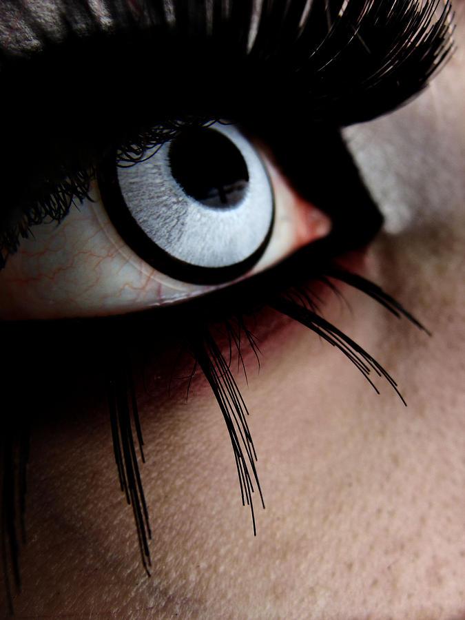 Eye Photograph - Infection by Kalie Hoodhood
