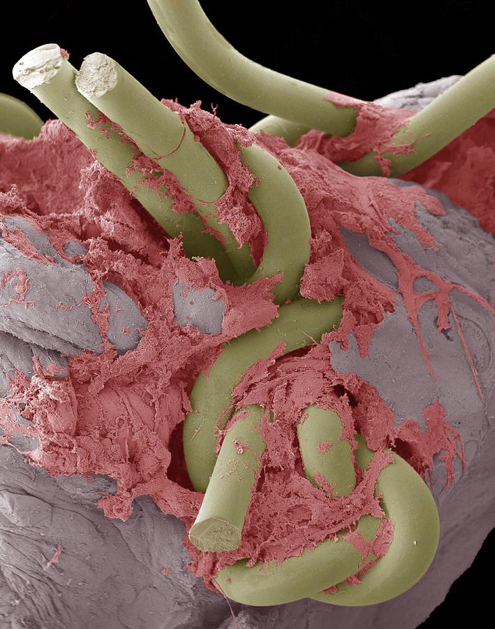 Equipment Photograph - Intestinal Suture Repair, Sem by Steve Gschmeissner