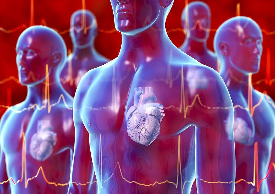 Arrhythmia Photograph - Irregular Heartbeat, Conceptual Artwork by David Mack
