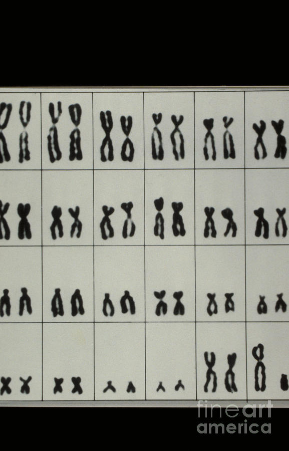 X And Y Chromosomes Photograph - Karyotype Of Male Chromosomes by Omikron