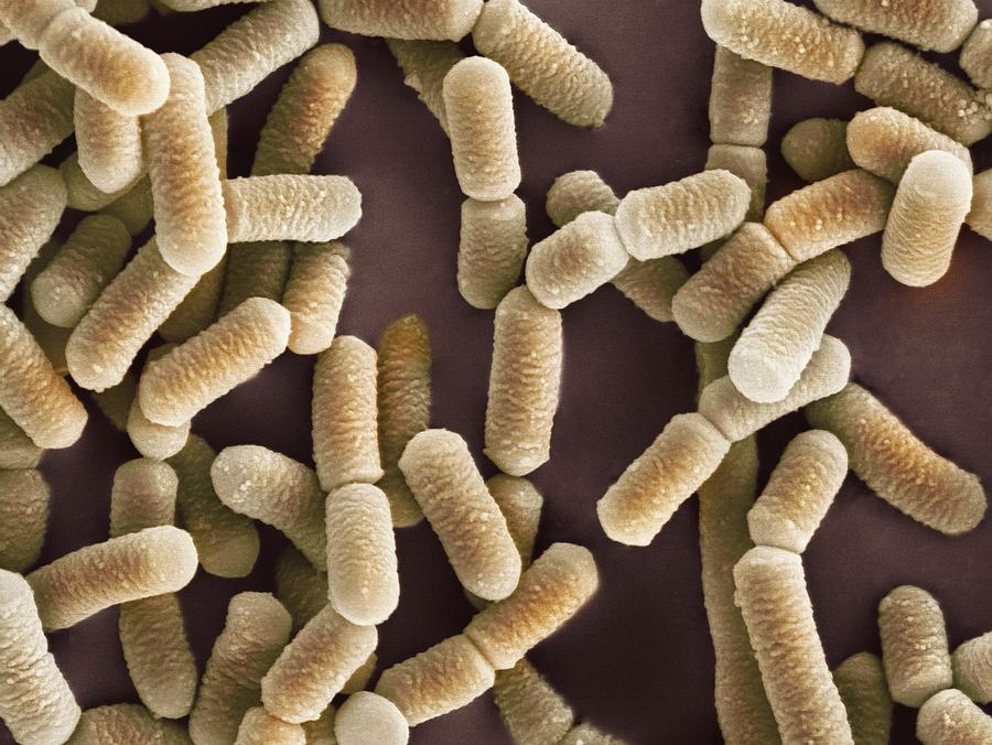 lactobacillus bacteria sem photograph by dr kari lounatmaa. Black Bedroom Furniture Sets. Home Design Ideas