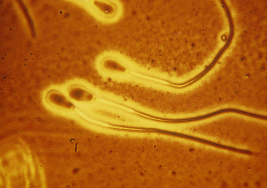 Images Photograph - Light Micrograph Of Sperm From A Bull by Dr T E Thompson