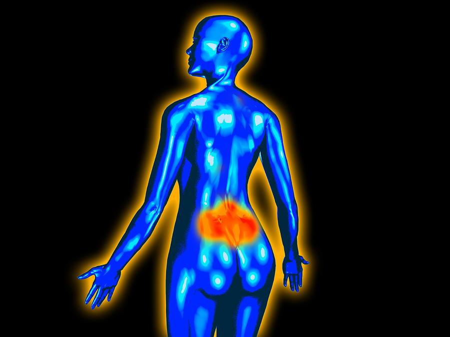 Human Photograph - Lower Back Pain by Christian Darkin