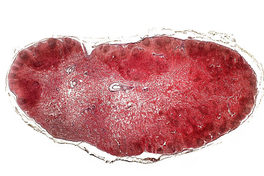 Tissue Photograph - Lymph Gland, Light Micrograph by Dr Keith Wheeler