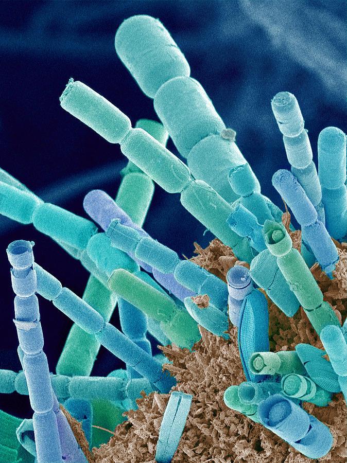 Phytoplankton Photograph - Marine Diatoms, Sem by Susumu Nishinaga