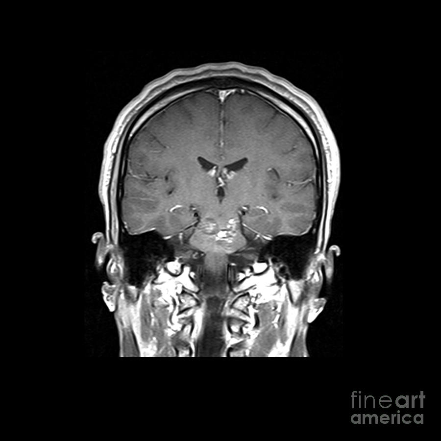 Magnetic Resonance Imaging Photograph - Mri Brainstem Cavernous Malformations by Medical Body Scans