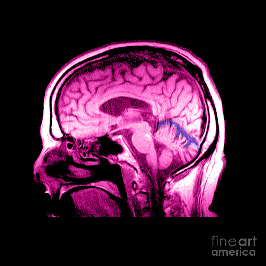 Mri Of Alcoholism Related Vermian Photograph By Medical