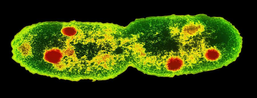 Mycobacterium Sp. Photograph - Mycobacterium Dividing, Tem by