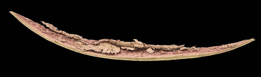Nail Photograph - Nail Clipping, Sem by Steve Gschmeissner