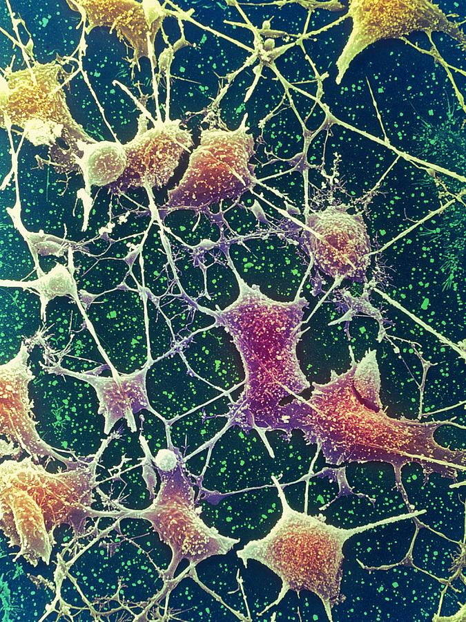 Anatomy Photograph - Nerve Cells, Sem by Steve Gschmeissner