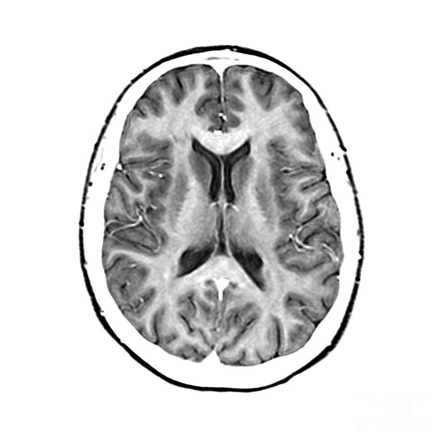 Magnetic Resonance Imaging Photograph - Normal Cross Sectional Mri Of The Brain by Medical Body Scans