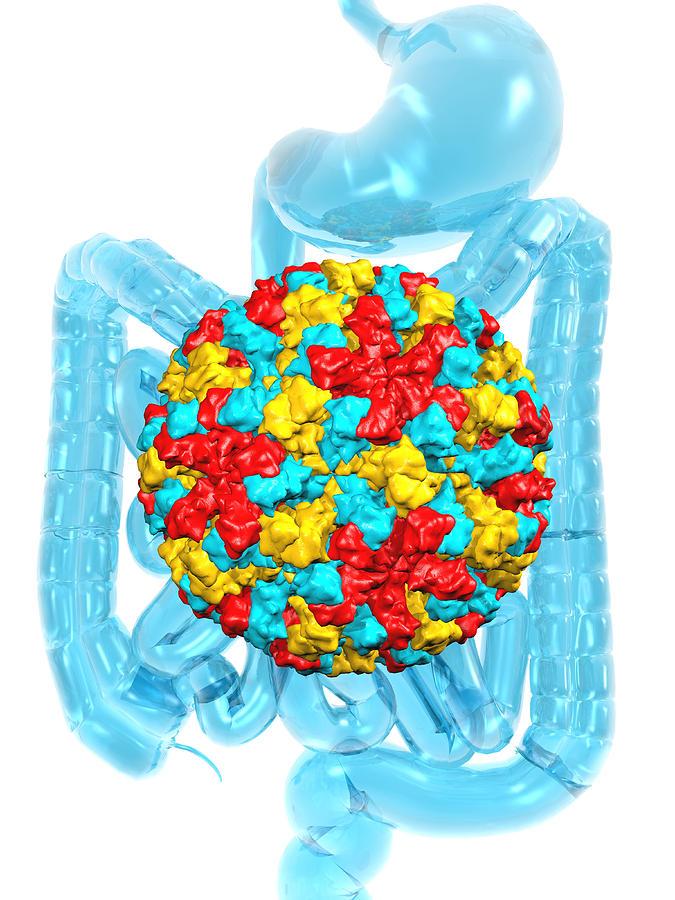 Norwalk Virus Photograph - Norwalk Virus Infection by Laguna Design