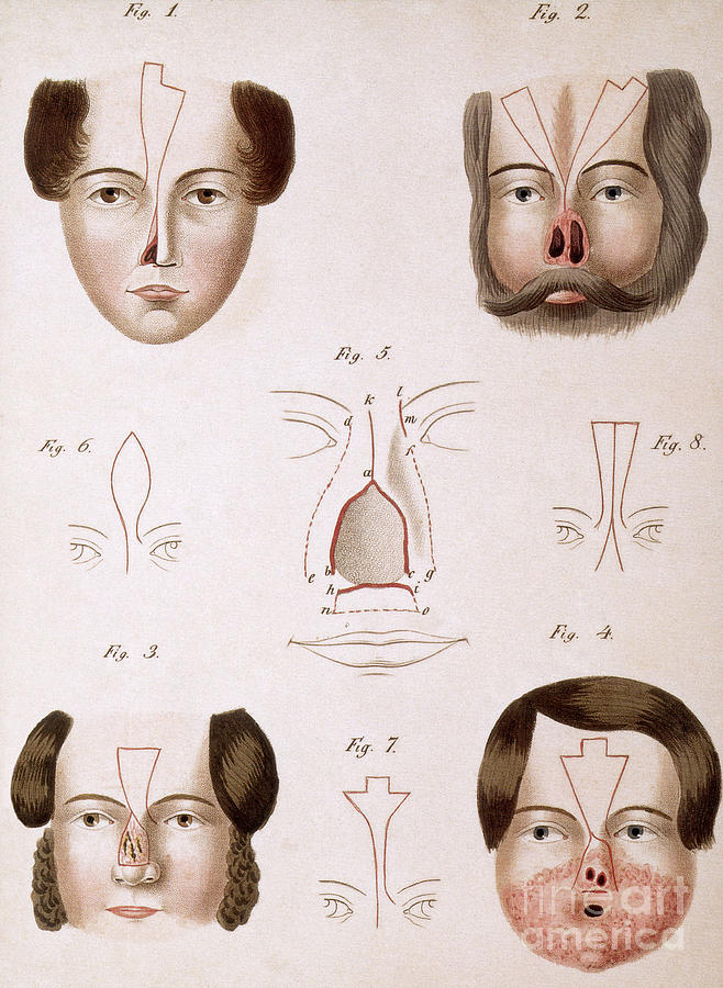 History Photograph - Nose Reconstruction, 1815 Medical Text by Science Source