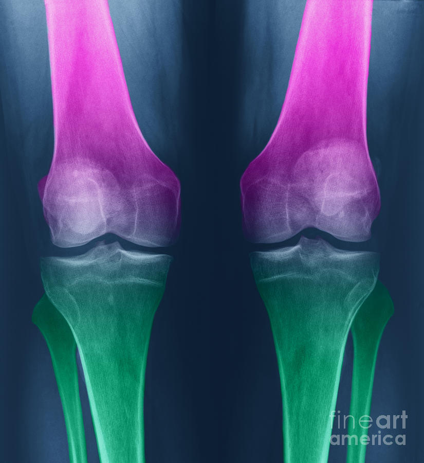 X-ray Photograph - Osteoarthritis Of The Knees by Ted Kinsman