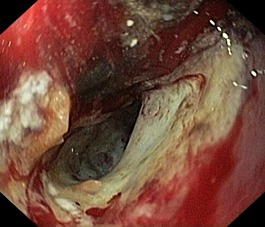 Endoscopy Photograph - Pancreatic Cancer In The Duodenum by Gastrolab