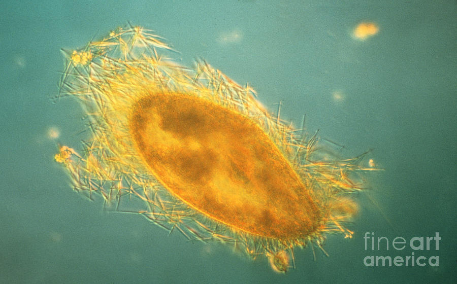 Microorganism Photograph - Paramecium With Ejected Trichocysts by Eric V Grave