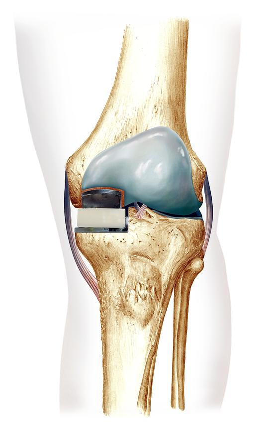 Partial Knee Replacement Photograph - Partial Knee Replacement, Artwork by D & L Graphics
