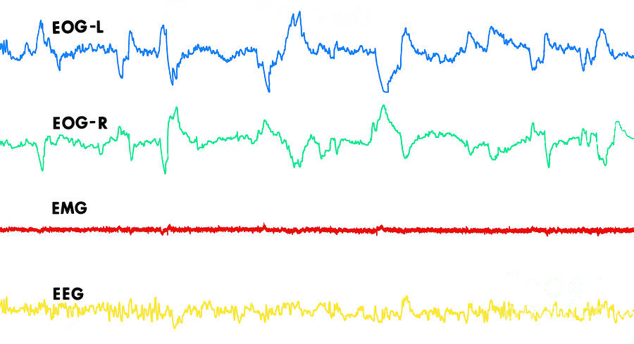 Polygraph Photograph - Polygraph Tracings Of Rem Sleep by Omikron