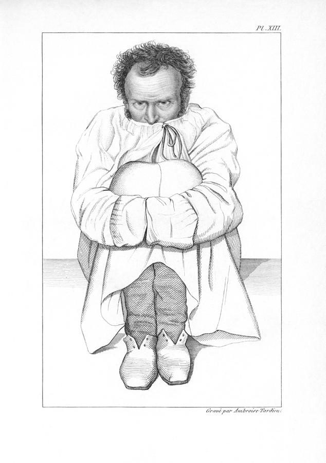 Human Photograph - Psychiatric Patient, 19th Century by Kings College London