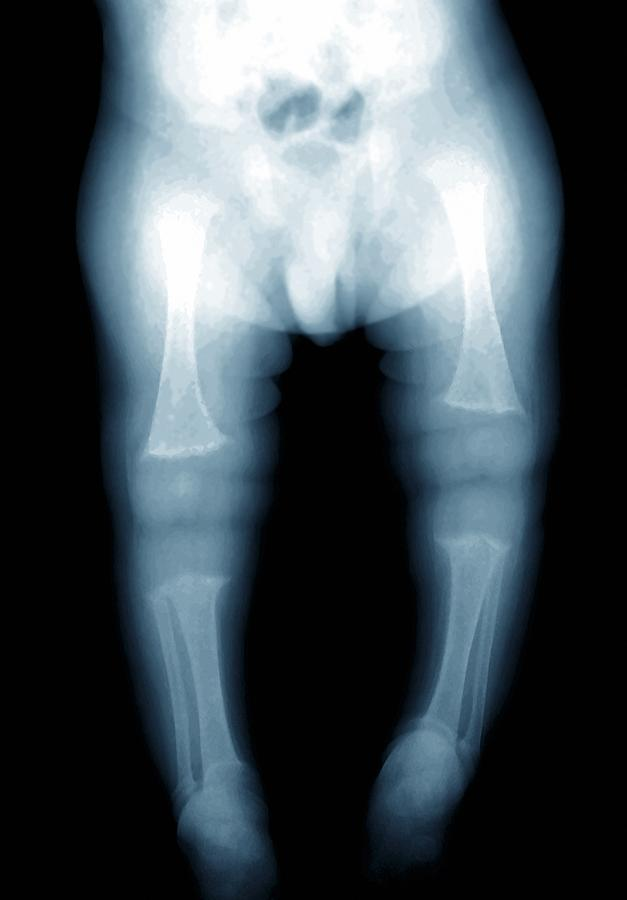 Black Background Photograph - Rickets, X-ray by Zephyr